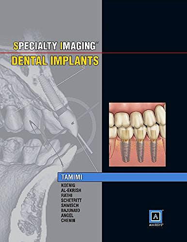 Portada del libro 9781937242190 Specialty Imaging. Dental Implants