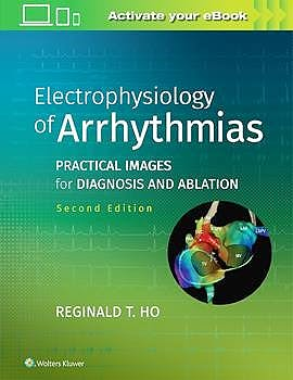 Portada del libro 9781975101107 Electrophysiology of Arrhythmias. Practical Images for Diagnosis and Ablation
