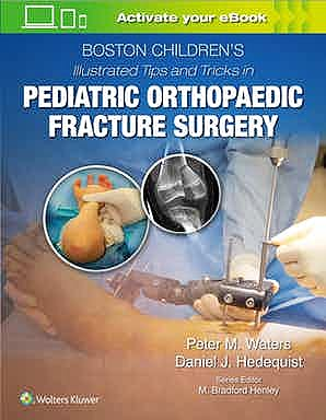 Portada del libro 9781975103859 Boston Children's Illustrated Tips and Tricks in Pediatric Orthopaedic Fracture Surgery