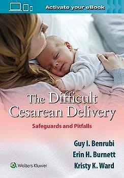 Portada del libro 9781975116675 The Difficult Cesarean Delivery. Safeguards and Pitfalls