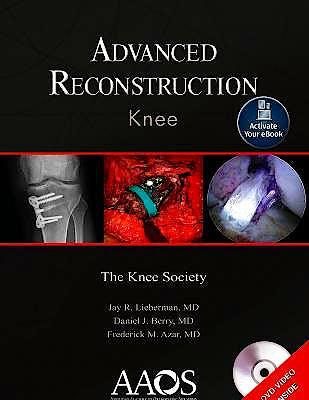 Portada del libro 9781975121747 Advanced Reconstruction. Knee (Print + Ebook)