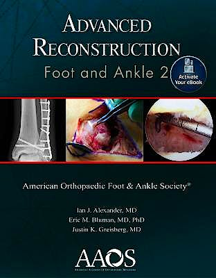 Portada del libro 9781975122676 Advanced Reconstruction. Foot and Ankle 2