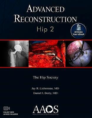 Portada del libro 9781975123833 Advanced Reconstruction. Hip 2