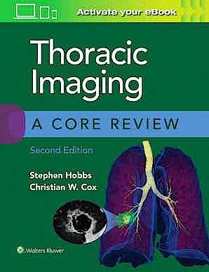 Portada del libro 9781975126223 Thoracic Imaging. A Core Review