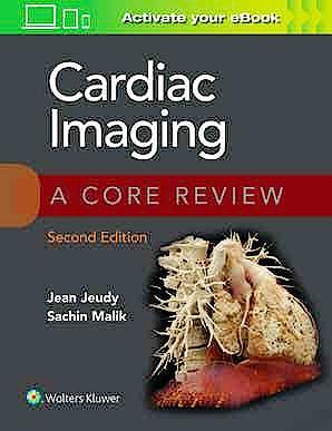 Portada del libro 9781975147990 Cardiac Imaging. A Core Review