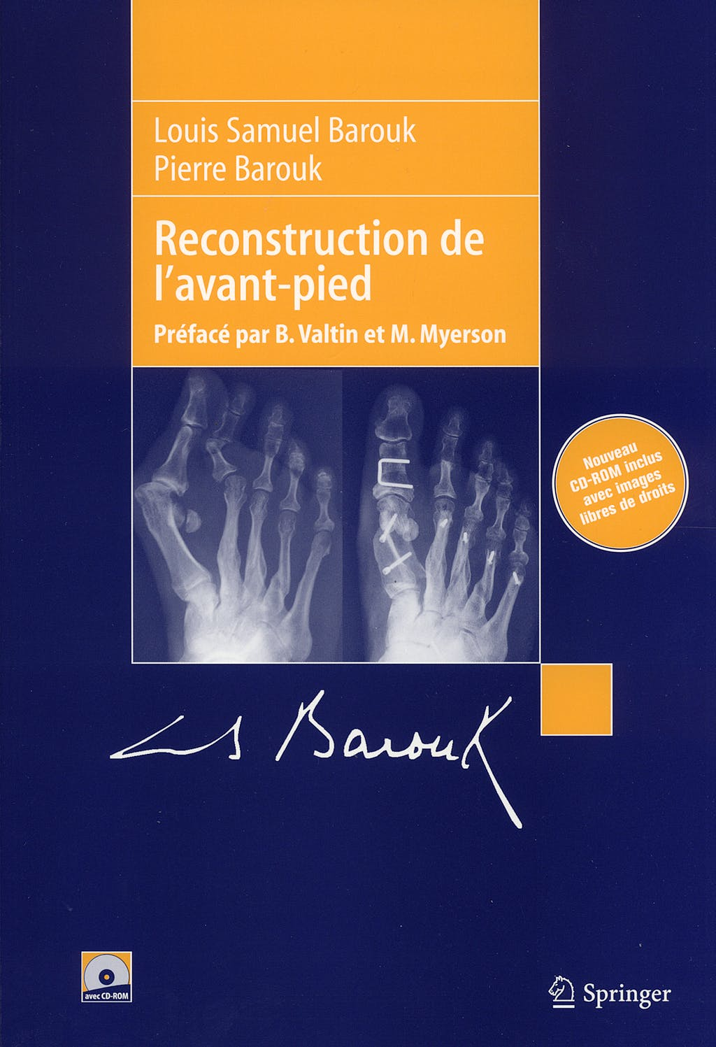 Portada del libro 9782287289446 Reconstruction de l´Avant-Pied + CD-ROM