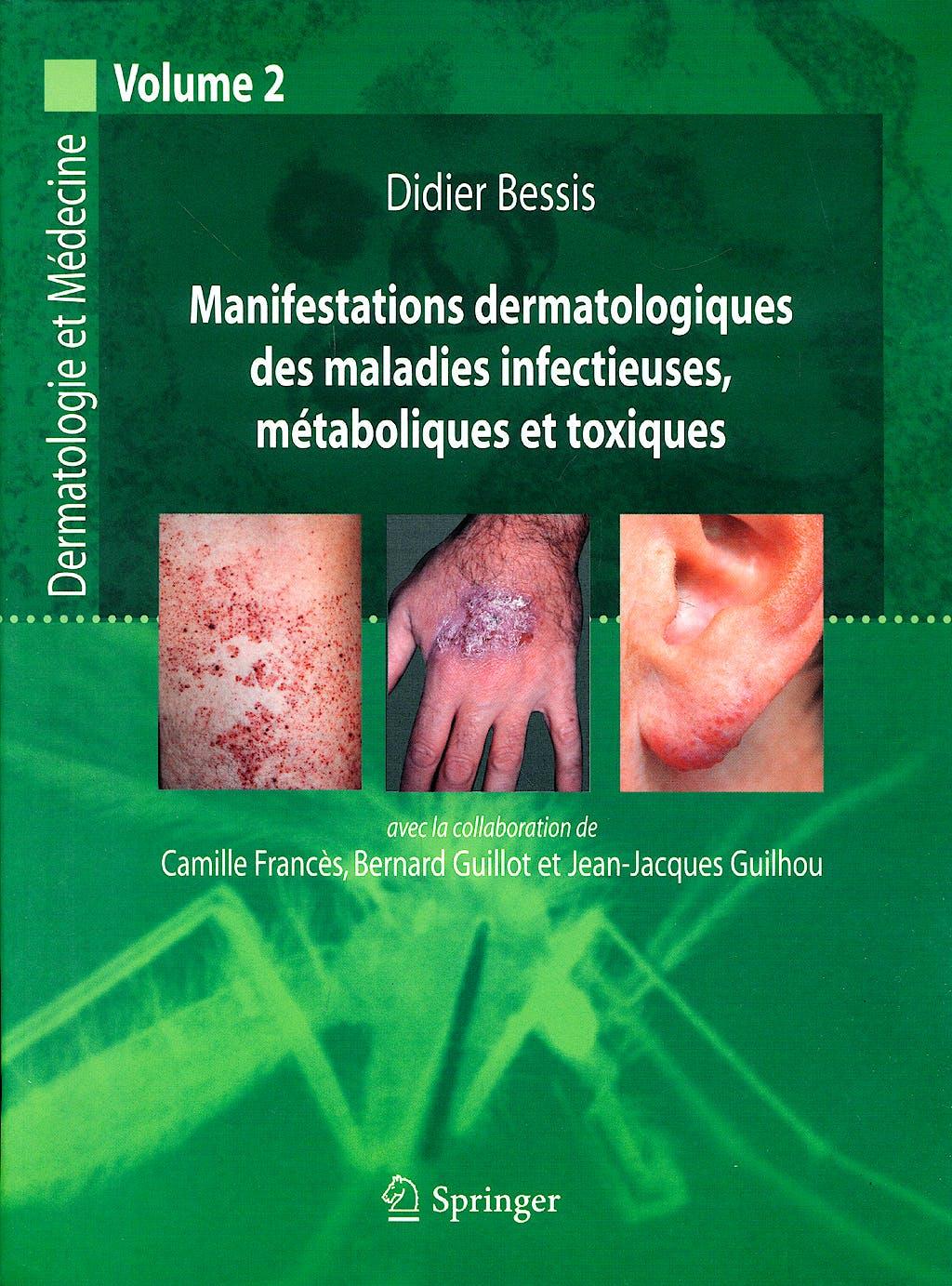 Portada del libro 9782287484933 Manifestations Dermatologiques Des Maladies Infetieuses Metaboliques