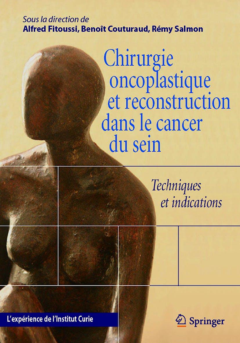 Portada del libro 9782287714757 Chirurgie Oncoplastique Et Reconstruction Dans Le Cancer Du Sein. Techniques Et Indications. L'experience de L'institut Curie