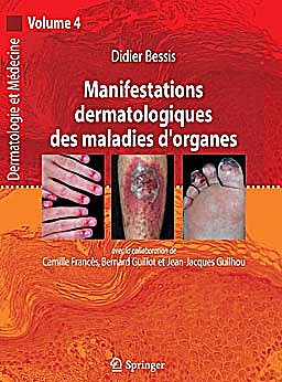 Portada del libro 9782287720727 Manifestations Dermatologiques Des Maladies D'organes (Dermatologie Et Medecine, Vol. 4)
