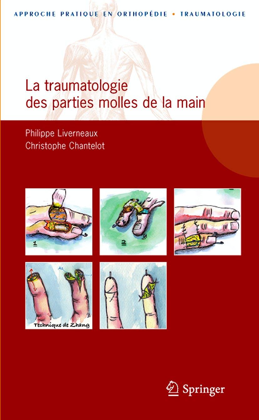 Portada del libro 9782287990670 La Traumatologie Des Parties Molles de la Main