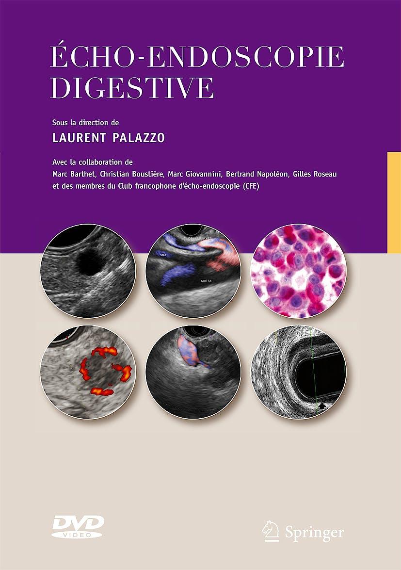 Portada del libro 9782287991639 Echo-Endoscopie Digestive