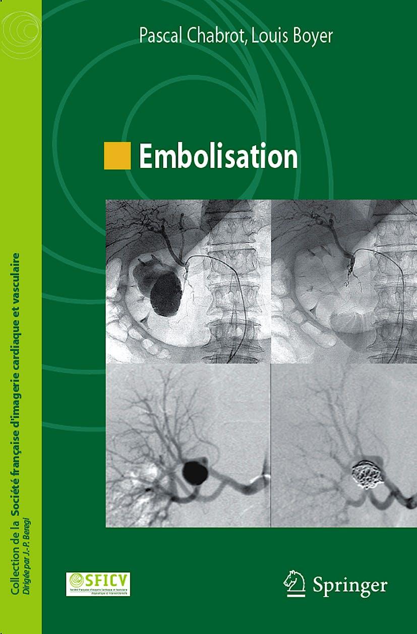 Portada del libro 9782287991691 Embolisation (Collection de la Societe Française D'imagerie Cardiaque Et Vasculaire)