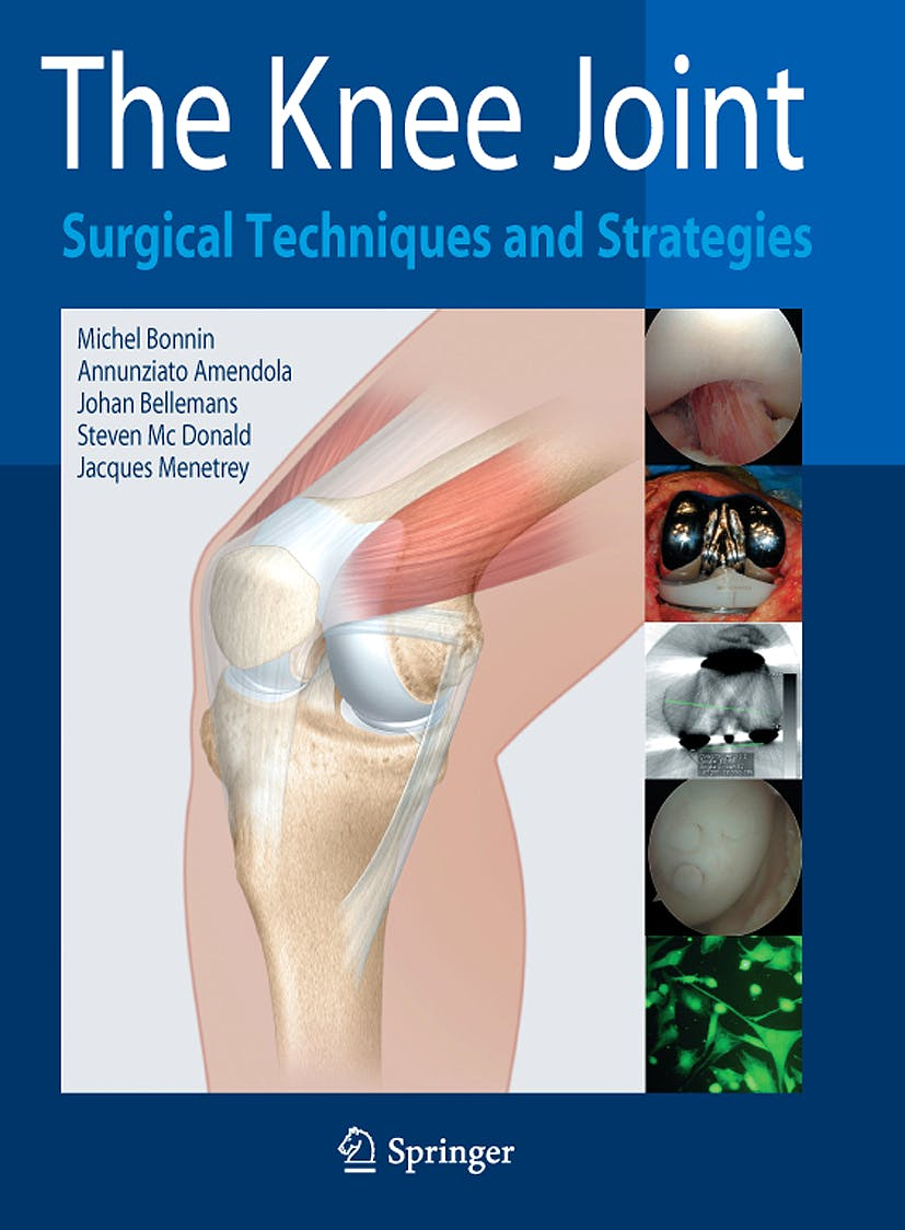 Portada del libro 9782287993527 The Knee Joint. Surgical Techniques and Strategies