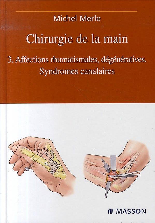 Portada del libro 9782294019111 Chirurgie de la Main: Tome 3, Affections Rhumatismales, Dégénératives. Syndromes Canalaires