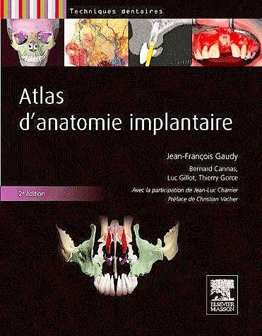Portada del libro 9782294713798 Atlas D'anatomie Implantaire