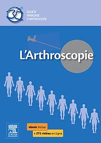 Portada del libro 9782294743542 L'arthroscopie Societe Française D'arthroscopie