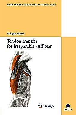 Portada del libro 9782817800486 Tendon Transfer for Irreparable Cuff Tear (Collection Geco, Vol. 1)