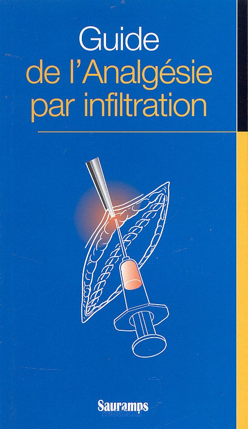 Portada del libro 9782840232575 Guide de L'analgesie Par L'infiltration