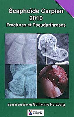 Portada del libro 9782840236993 Scaphoïde Carpien 2010 Fractures Et Pseudarthroses
