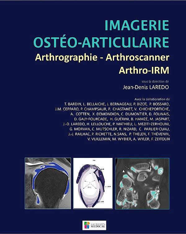 Portada del libro 9782840237433 Imagerie Osteo-Articulaire: Arthrographie - Arthroscanner - Arthro-Irm