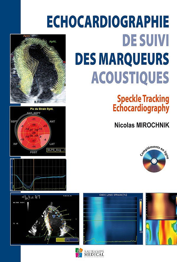 Portada del libro 9782840237631 Echocardiographie de Suivi Des Marqueurs Acoustiques