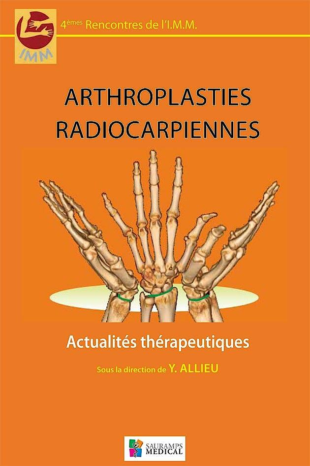 Portada del libro 9782840238287 Arthroplasties Radiocarpiennes. Actualités Thérapeutiques - 4èmes Rencontres de L'imm
