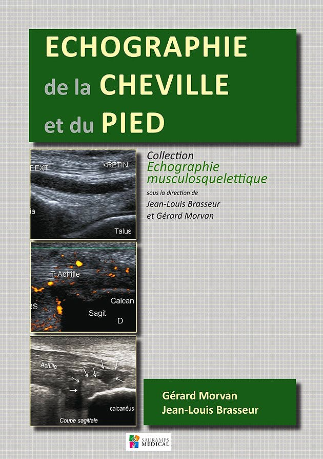 Portada del libro 9782840238584 Echographie de la Cheville et du Pied
