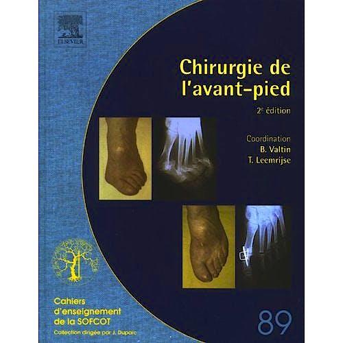 Portada del libro 9782842997175 Chirurgie de l´Avant-Pied (Cahiers d´Enseignement de la SOFCOT)