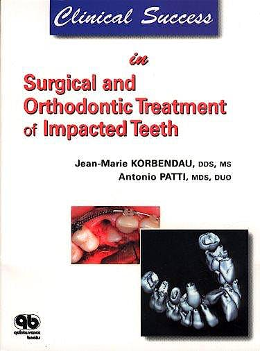 Portada del libro 9782912550446 Clinical Success in Surgical and Orthodontic Treatment of Impacted Teeth