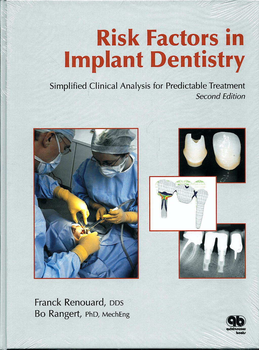 Portada del libro 9782912550569 Risk Factors in Implant Dentistry. Simplified Clinical Analysis for Predictable Treatment