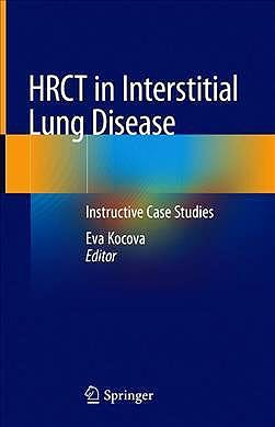 Portada del libro 9783030163143 HRCT in Interstitial Lung Disease. Instructive Case Studies