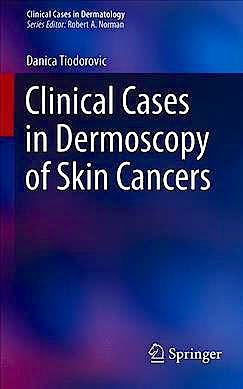 Portada del libro 9783030294465 Clinical Cases in Dermoscopy of Skin Cancers (Clinical Cases in Dermatology)
