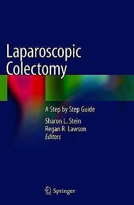 Portada del libro 9783030395575 Laparoscopic Colectomy. A Step by Step Guide