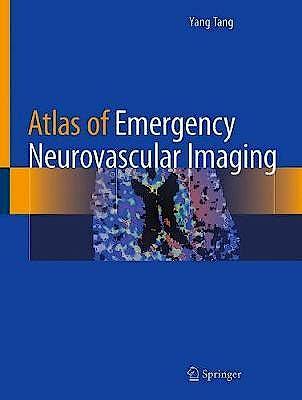Portada del libro 9783030436537 Atlas of Emergency Neurovascular Imaging
