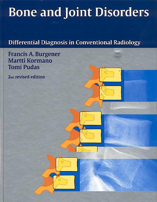 Portada del libro 9783131073921 Bone and Joint Disorders