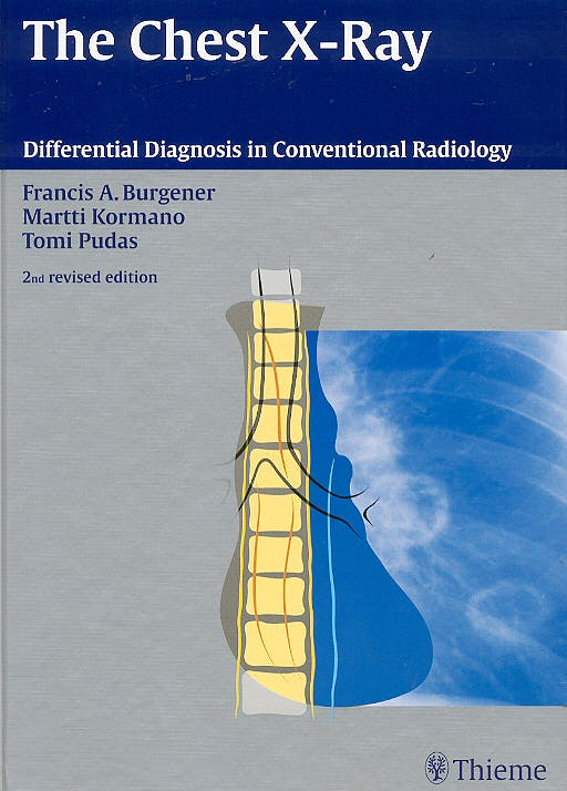 Portada del libro 9783131076120 The Chest X-Ray. Differential Diagnosis in Conventional Radiology