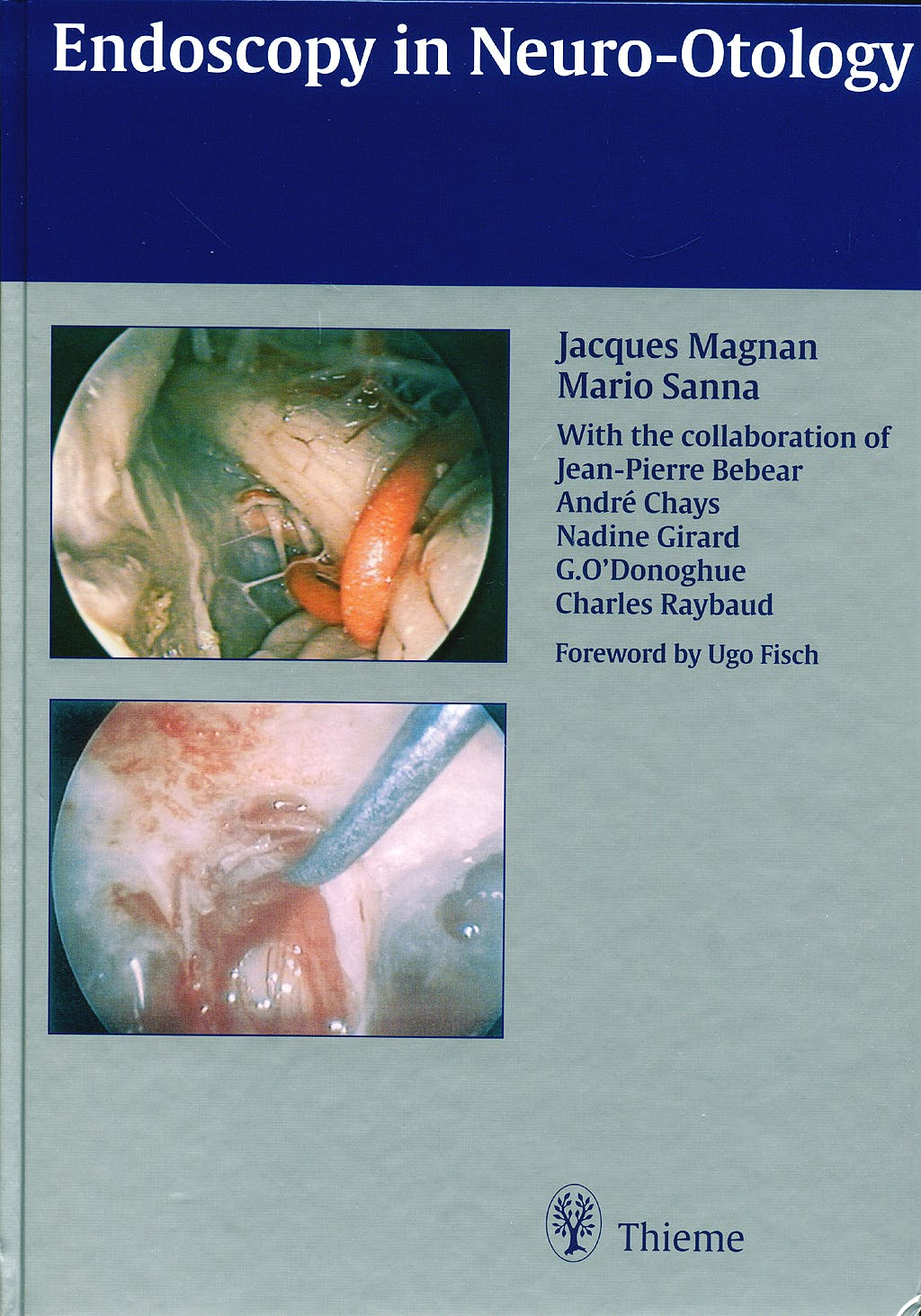 Portada del libro 9783131130617 Endoscopy in Neurootology