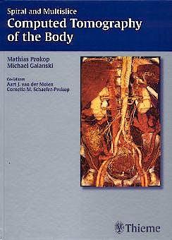 Portada del libro 9783131164810 Spiral and Multislice Computed Tomography of the Body