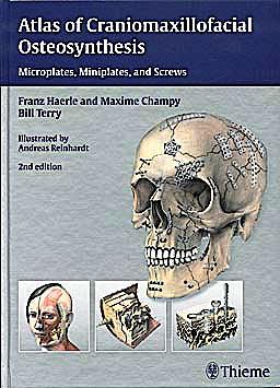 Portada del libro 9783131164926 Atlas of Craniomaxillofacial Osteosynthesis. Microplates, Miniplates, and Screws