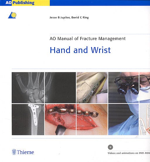 Portada del libro 9783131276117 AO Manual of Fracture Management. Hand and Wrist + Dvd-Rom