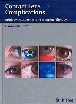 Portada del libro 9783131277916 Contact Lens Complications: Etiology, Pathogenesis