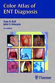 Portada del libro 9783131293954 Color Atlas of Ent Diagnosis