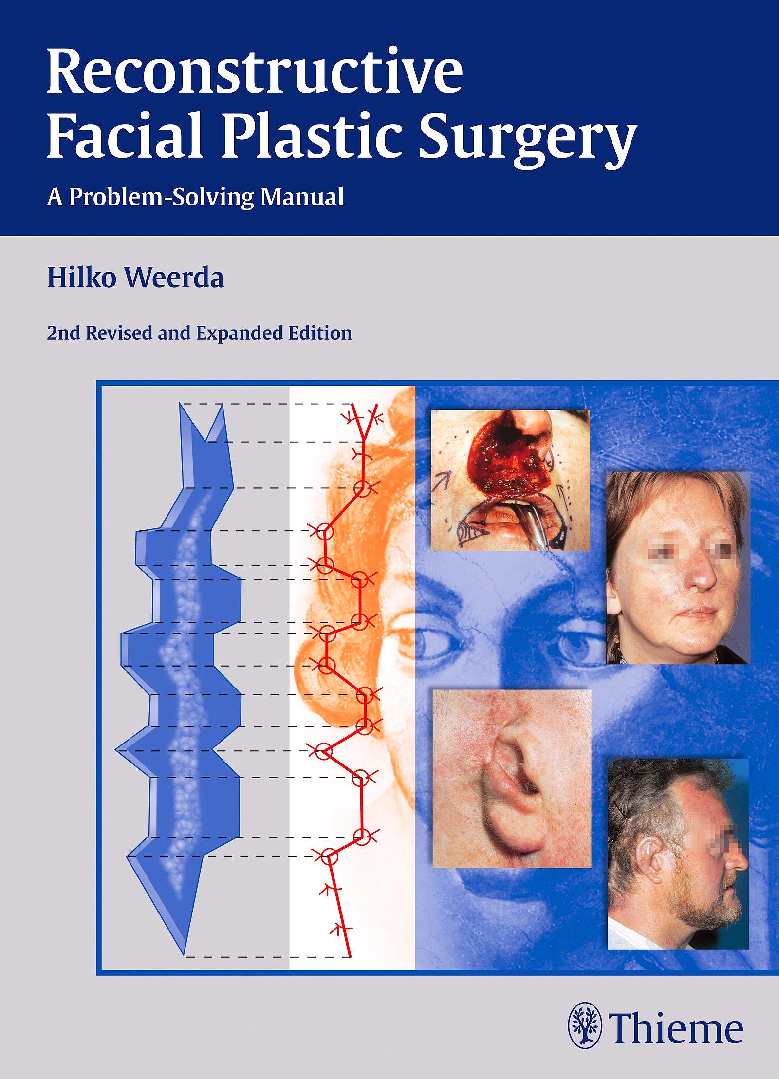 Portada del libro 9783131296429 Reconstructive Facial Plastic Surgery. a Problem-Solving Manual