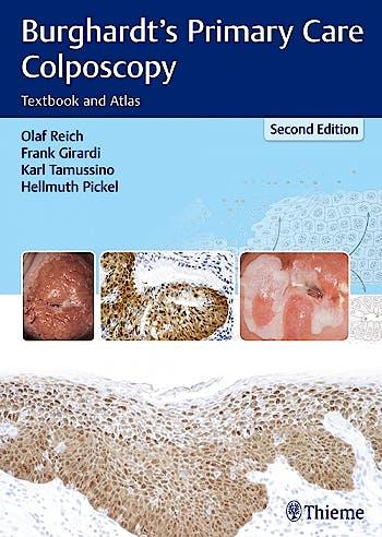 Portada del libro 9783131307224 Burghardt's Primary Care Colposcopy. Textbook and Atlas