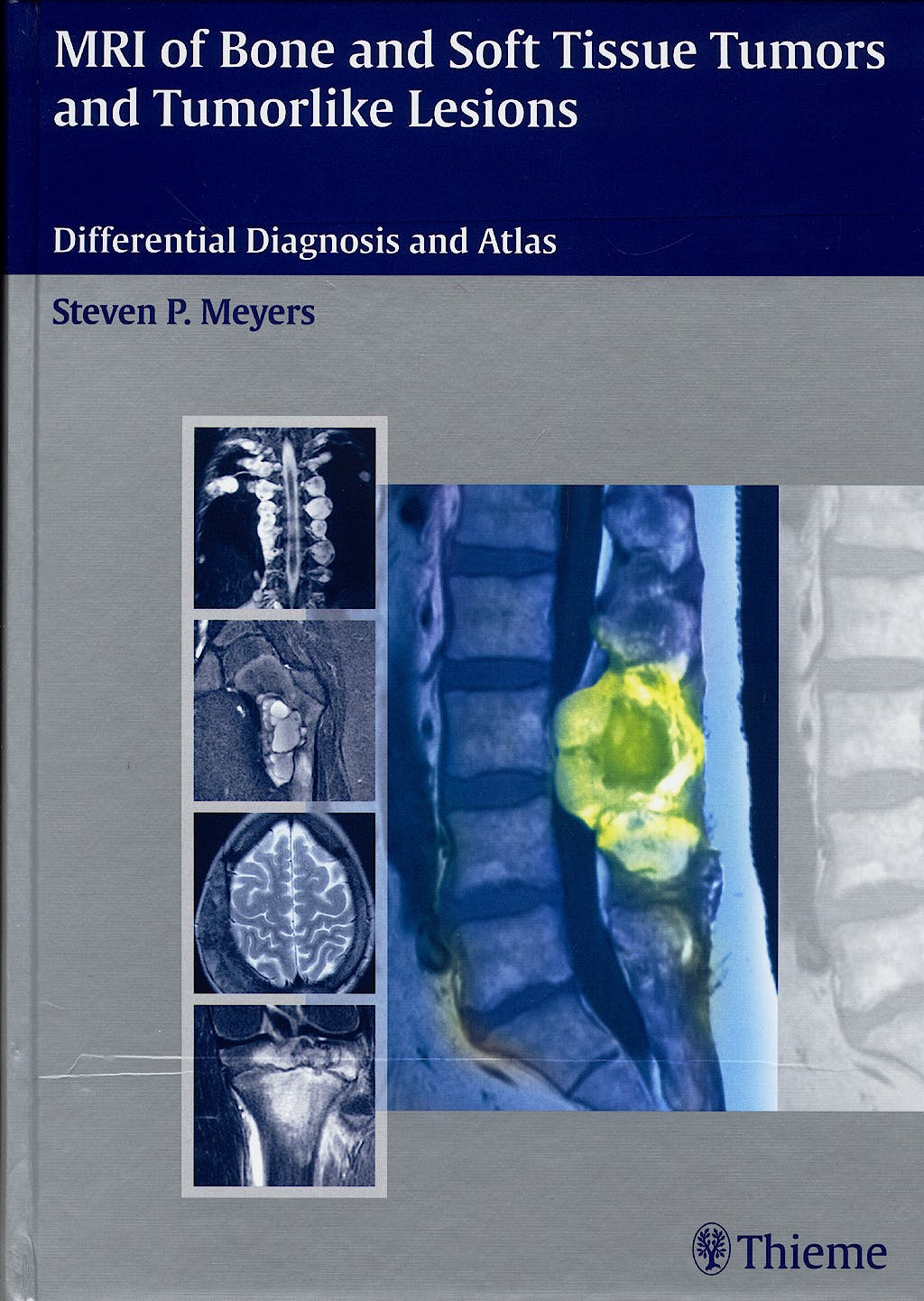 Portada del libro 9783131354211 Mri of Bone and Soft Tissue Tumors and Tumorlike Lesions. Differential Diagnosis and Atlas