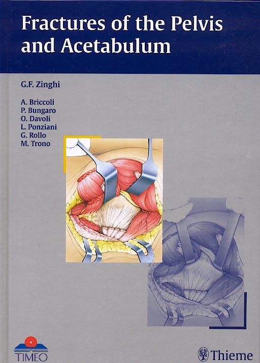 Portada del libro 9783131363817 Fractures of the Pelvis and Acetabulum
