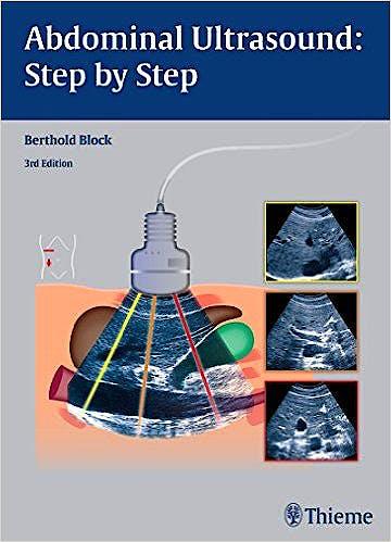 Portada del libro 9783131383631 Abdominal Ultrasound: Step by Step