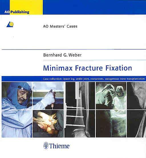 Portada del libro 9783131392718 Minimax Fracture Fixation