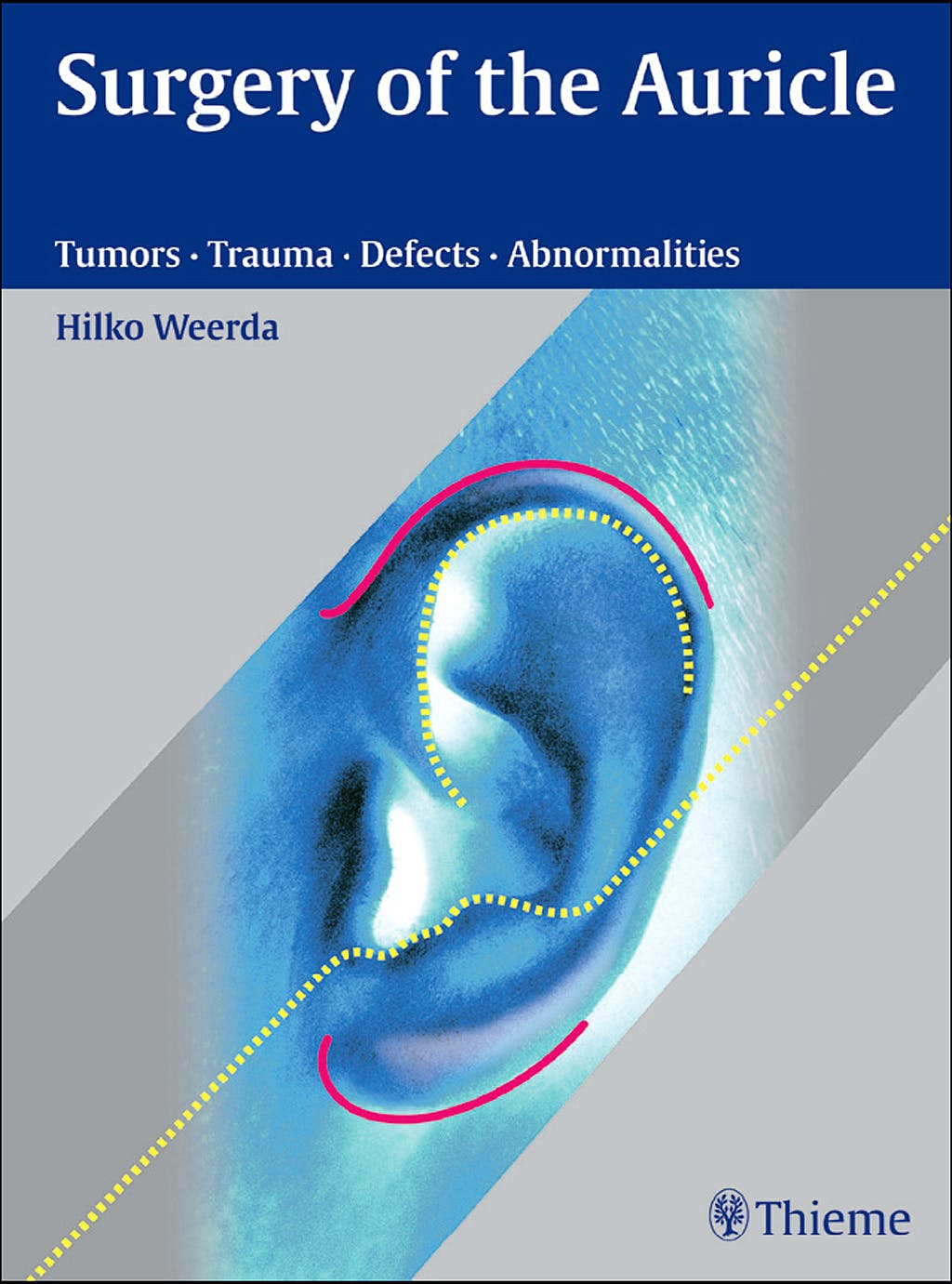 Portada del libro 9783131394118 Surgery of the Auricle. Tumors · Trauma · Defects · Abnormalities