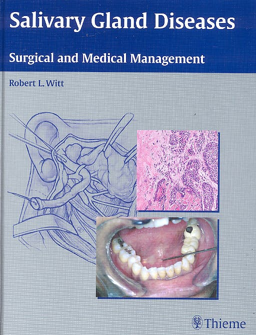 Portada del libro 9783131396112 Salivary Gland Diseases. Surgical and Medical Management